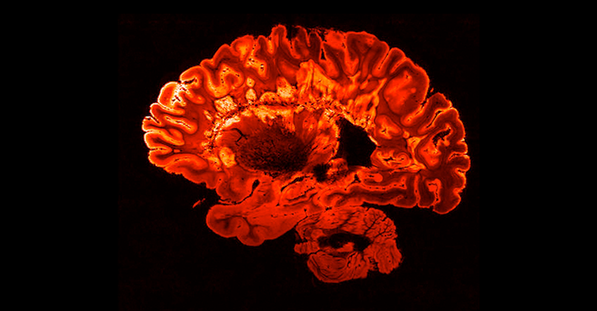 red mri brain scan